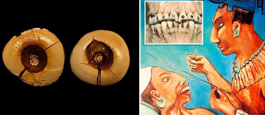 Первые зубные пломбы