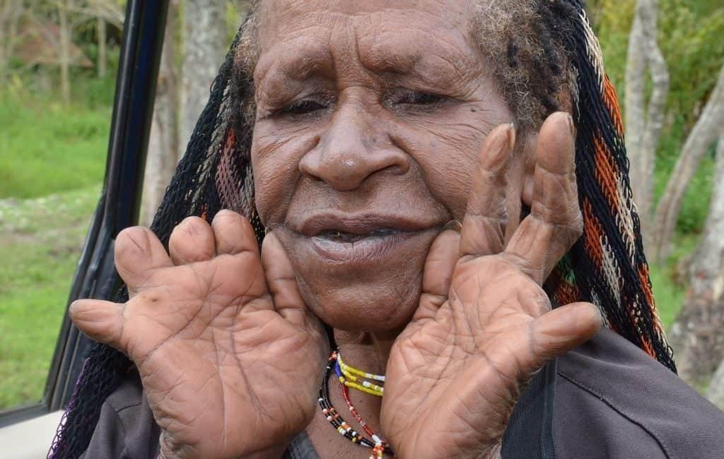 Обрезание пальцев - традиция племени дани