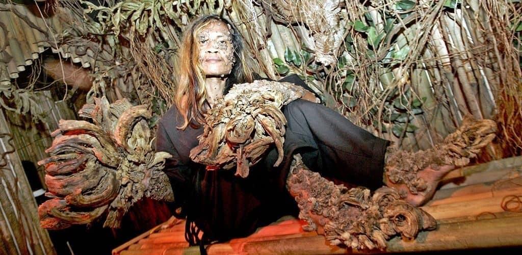 Деде Косвара, человек-дерево