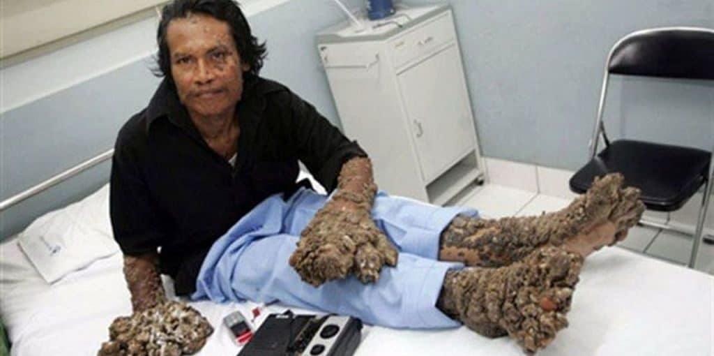 Деде Косвара после операции