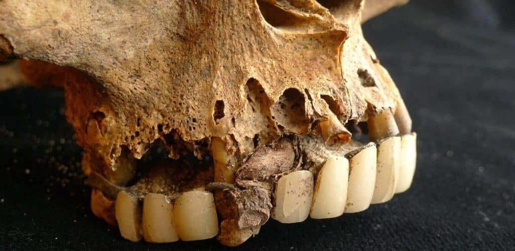 Зубные протезы, найденные при раскопках