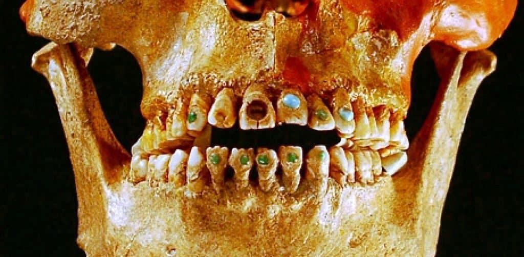 Зубные артефакты со стразами