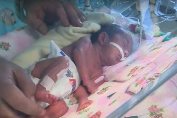 Младенец в инкубаторе